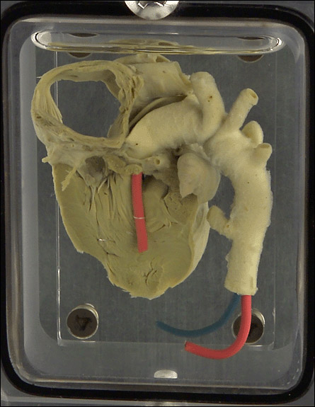 "Designed to take photos of soon-to-be mothers who are at least 8 months pregnant, and explore my relationship with my twin brother who died at birth. 4""x5"" camera made from Aluminium, Titanium, Acrylic, Formaldehyde and an infant human heart."